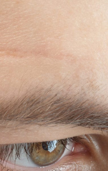 Can I Remove Facial Scars With Scar Cream Alhydran