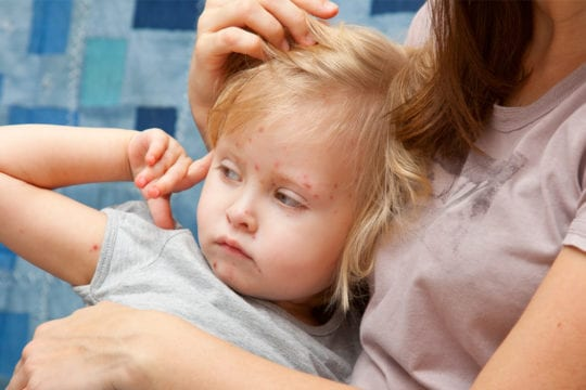 Prevent and reduce chicken pox scars