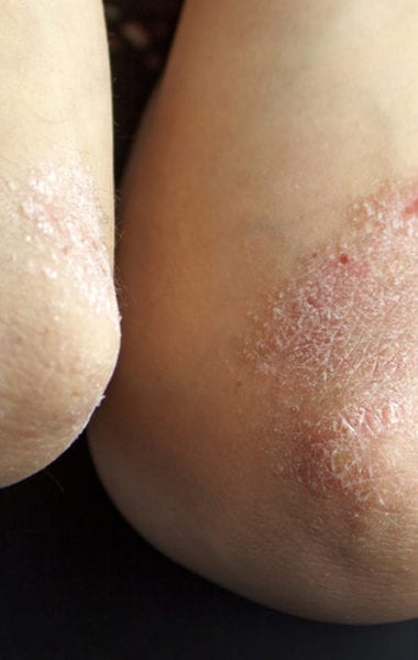 Tips to prevent dry skin