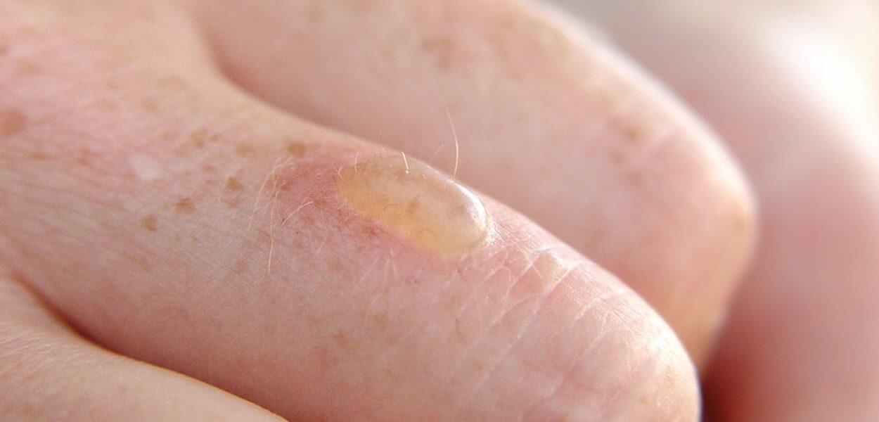 How do you treat a burn blister