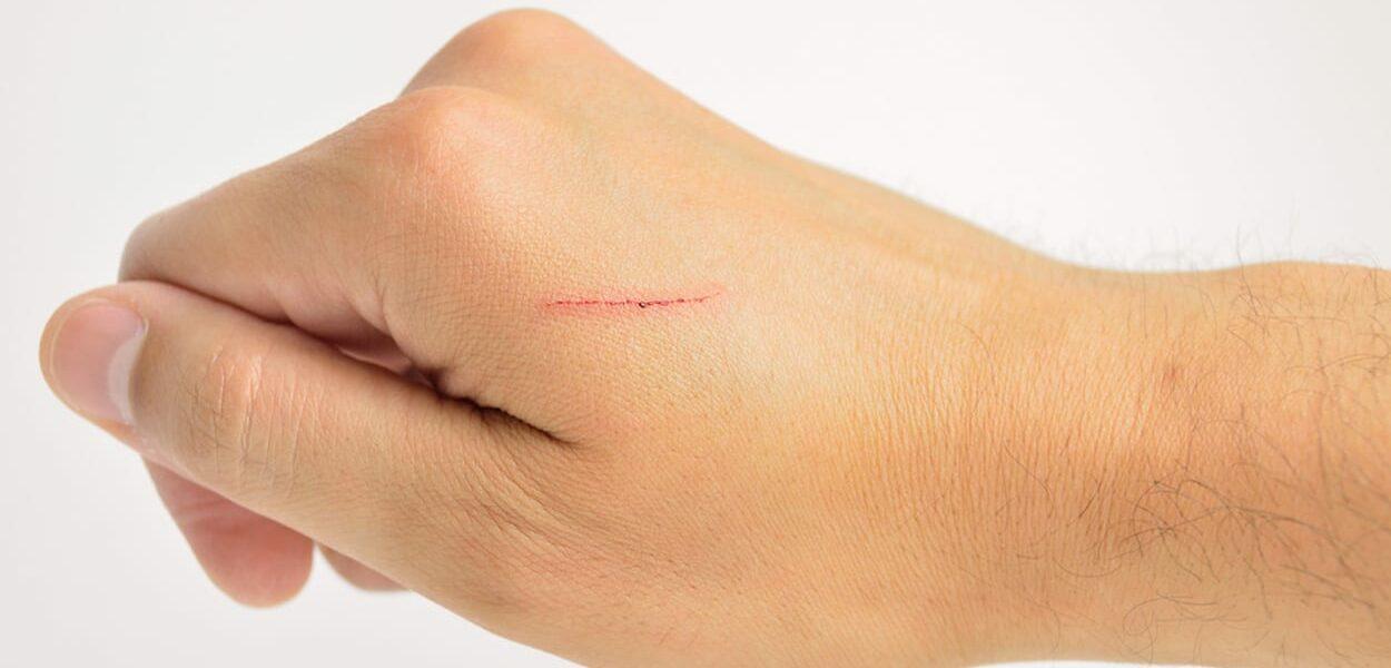 Remove small scars