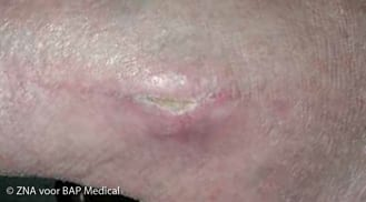 ALHYDRAN Case Study: Chronical wound - After