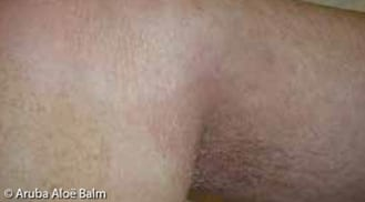 ALHYDRAN Case Study: Second degree burn - After
