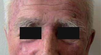 ALHYDRAN Case Study: Erosive skin - After