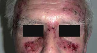 ALHYDRAN Case Study: Erosive skin - Before