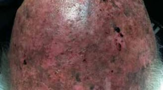 ALHYDRAN Case Study: Multiple actinic keratosis - Before