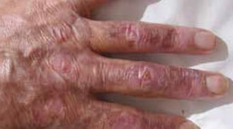 ALHYDRAN Case Study: Burn caused by explosion - After