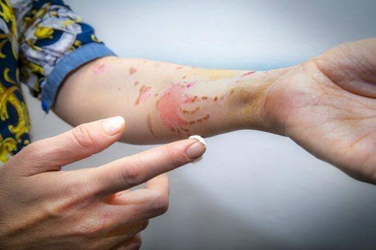 ALHYDRAN burn wound treatment