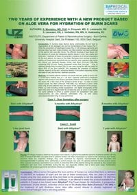 ALHYDRAN clinical study - Two years of experience with a new product based on Aloe Vera