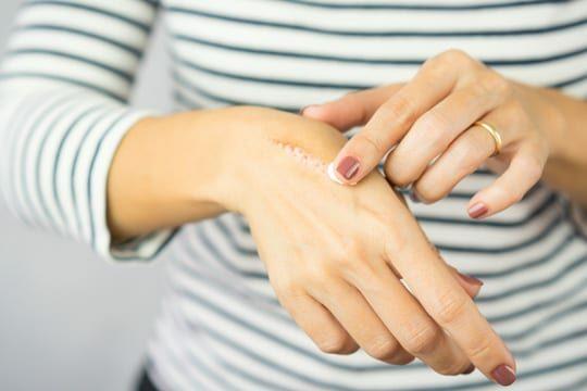 ALHYDRAN scar treatment