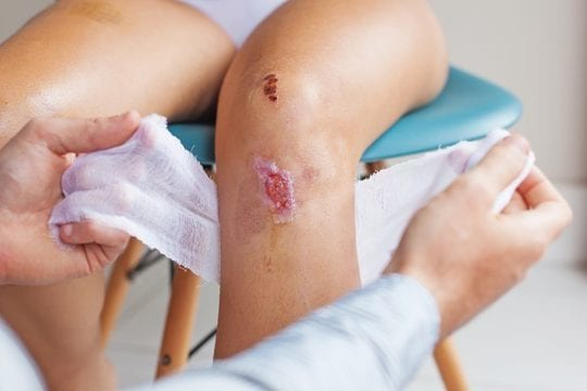 ALHYDRAN wound treatment